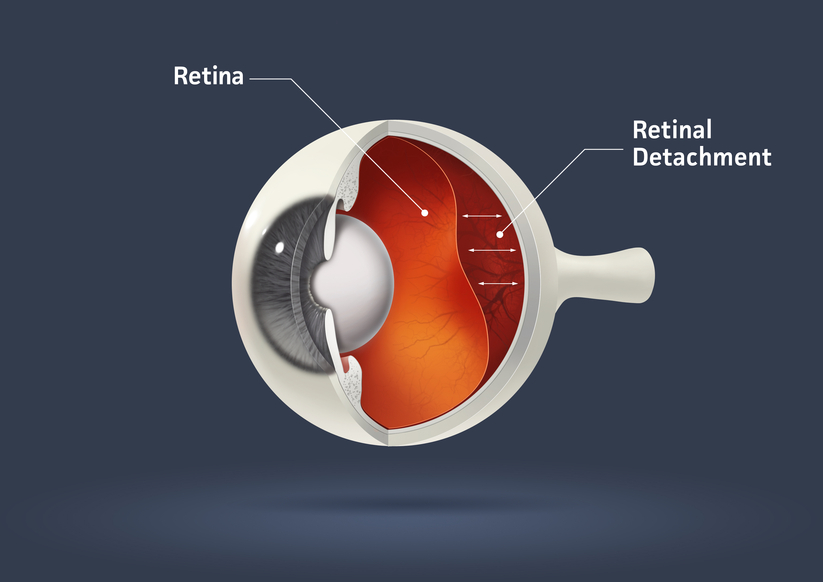 retinal detachment article